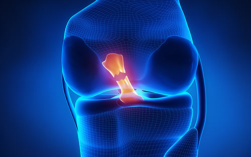 Anterior cruciate ligament knee injury causes symptoms treatment and recovery