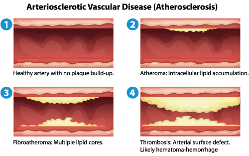 Leg pain atherosclerosis artery blockage description
