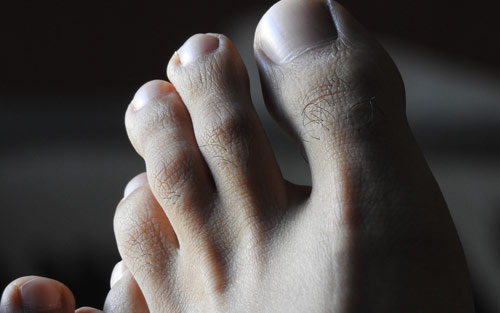 Athletes foot treatment and prevention for clear skin