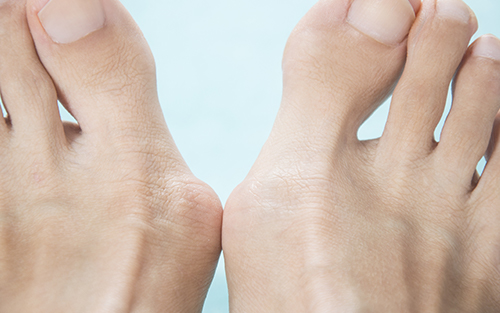 Common foot problems bunions