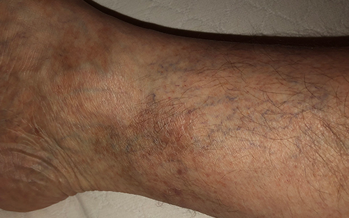 Venous insufficiency can be an underlying condition of vericose veins