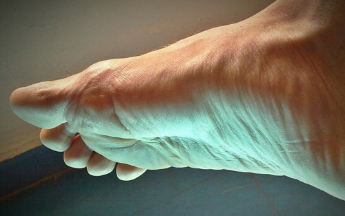 Symptoms and treatment of common foot pain problems