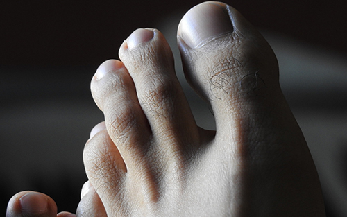 Causes and treatments of common foot problems