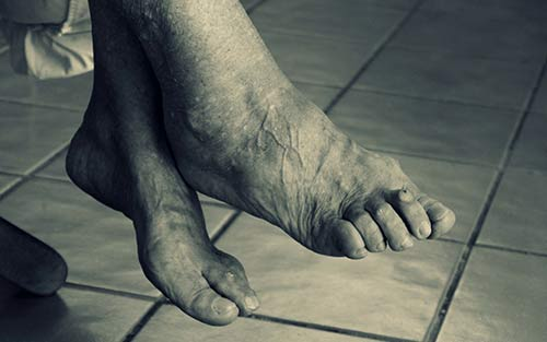 Rheumatoid arthritis causes discomfort and pain leading to plantar fasciitis