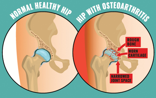 Hip replacement surgery osteoarthritis condition