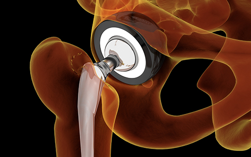 Hip replacement surgery ball and socket joint