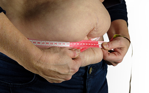 Swollen feet can become more frequent as boby weight or obesity increases