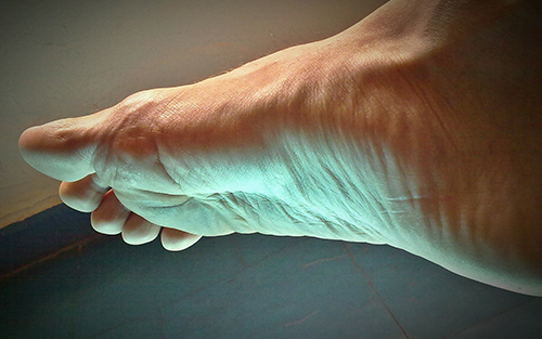 Common foot problems peripheral neuropathy