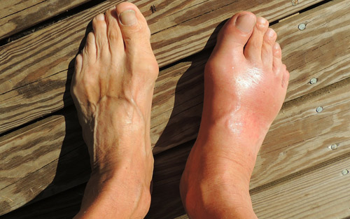Swollen foot from plantar fasciitis symptoms