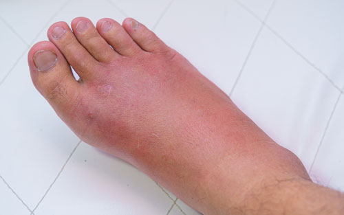 Swollen sprained ankle requiring medical attention