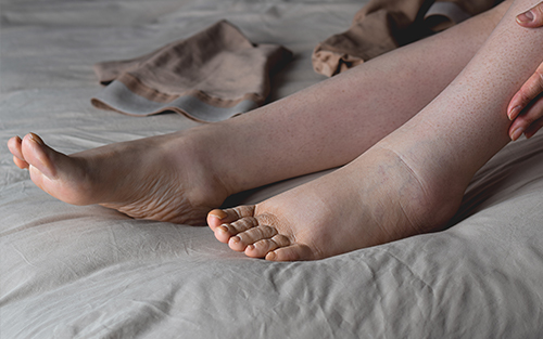 Symptoms and conditions associated with and aggrivated by swollen legs and tight skin