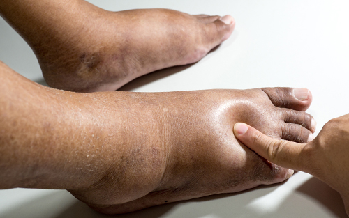 Swollen feet occur for a vast amount of reasons including injuries and illnesses