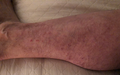 Venous insufficiency is a common and correctable condition