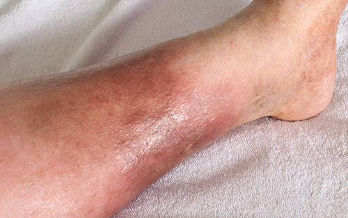 Swollen feet can develop with venous insufficiency
